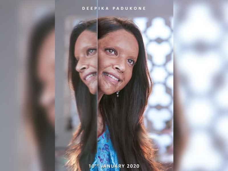 'Chhapaak' First Look: Deepika Padukone as an acid attack survivor.